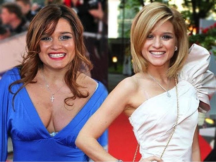 бородина ксения фото до и после